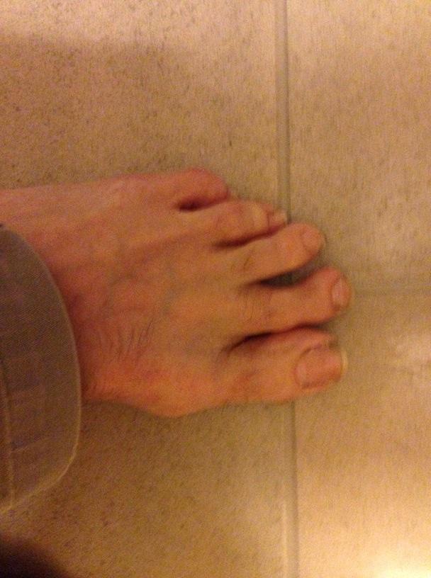 long toe